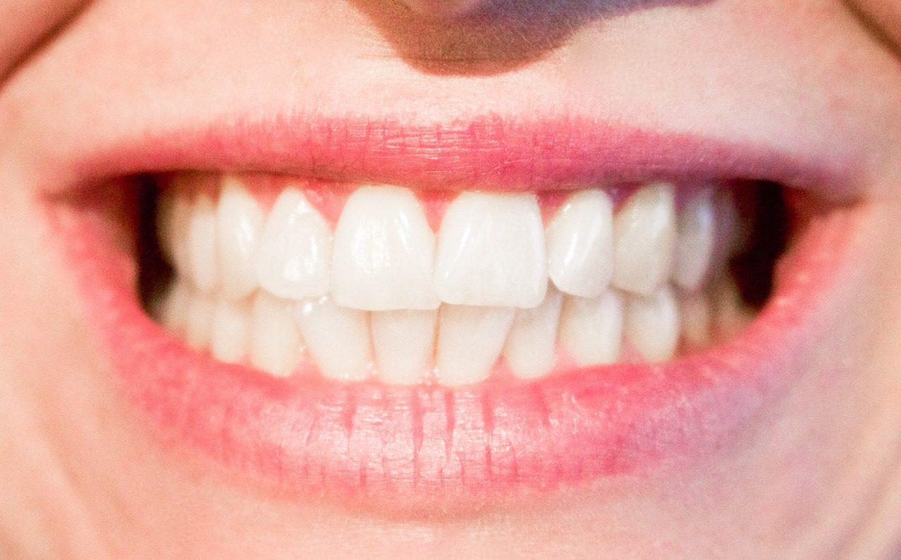 Zahnzusatzversicherung wechseln – lohnt sich das 2016?