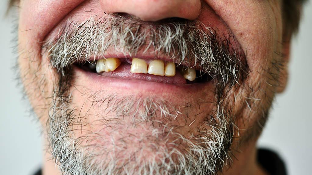 Im Zahnarzt-Stuhl sind alle Menschen gleich
